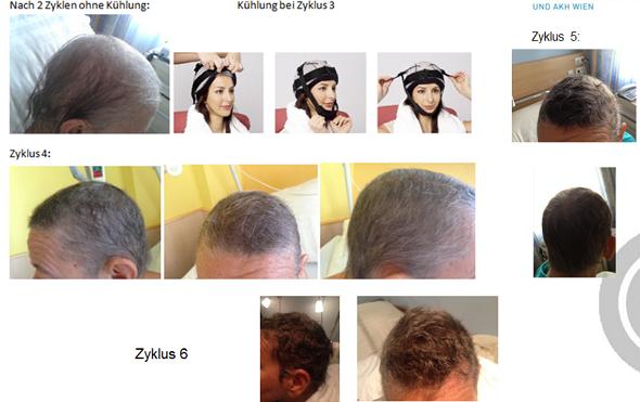 Kühlhaube gegen chemobedingtem Haarausfall